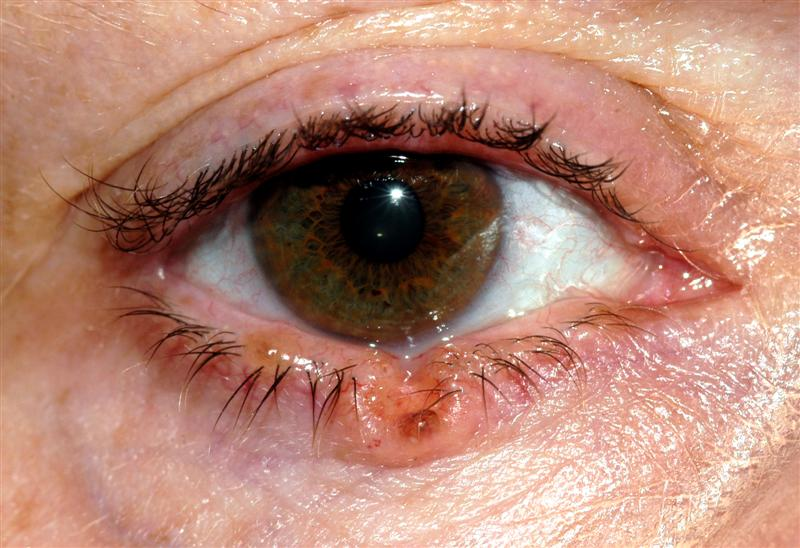 What are the 'premalignant' tumours of the eyelids?