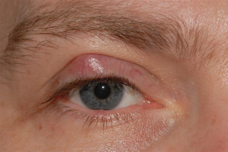 Picture of Xanthelasma on MedicineNet