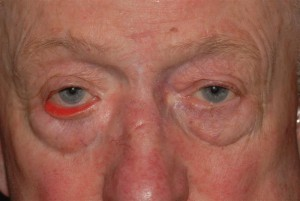What are the symptoms of ectropion?