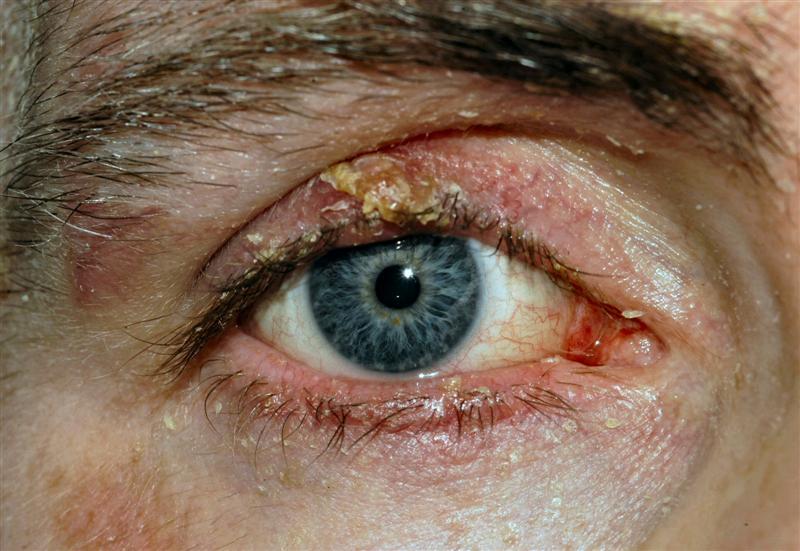 Blepharitis Bopss