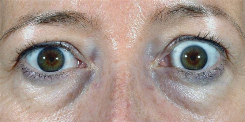 Upper eyelid lowering – BOPSS :